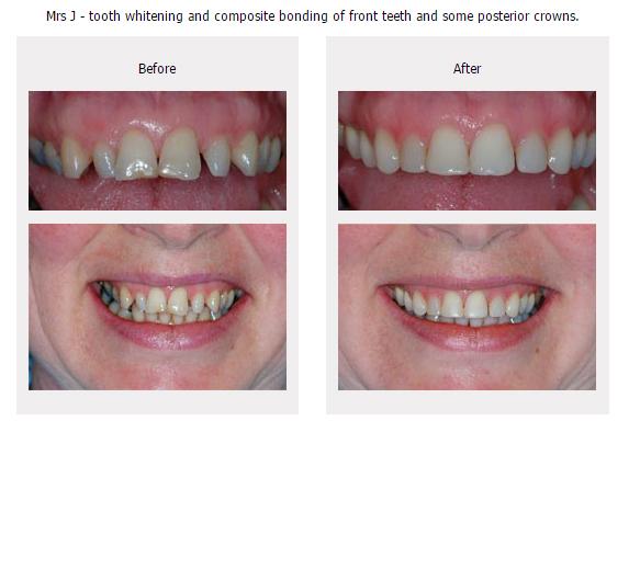 Composite Bonding Gallery Ilkley Dentist Leeds
